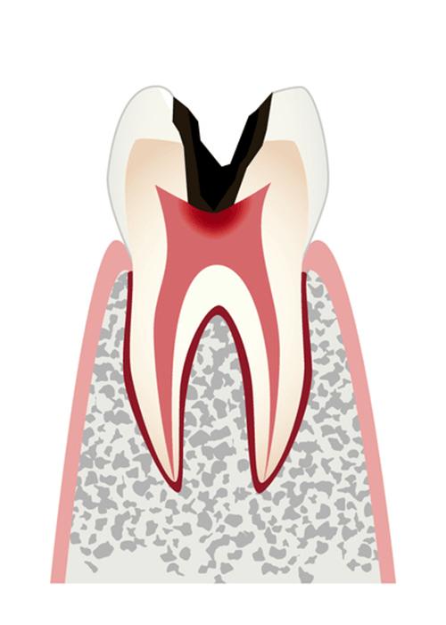 歯の神経を取って、歯の根の治療をします